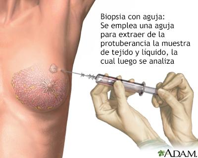 papiloma intraductal de mama sintomas