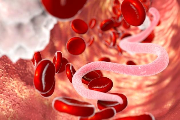 pregătirea copiilor pentru enterobioză pentru a indeparta verucile genitale sau nu