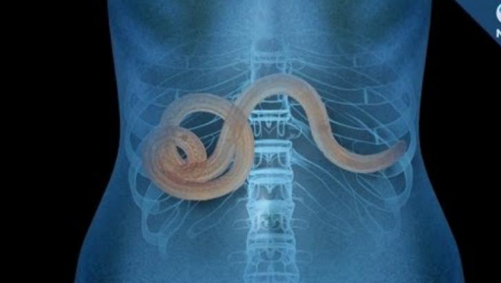 simptome ale prezenței paraziților în tratamentul corpului