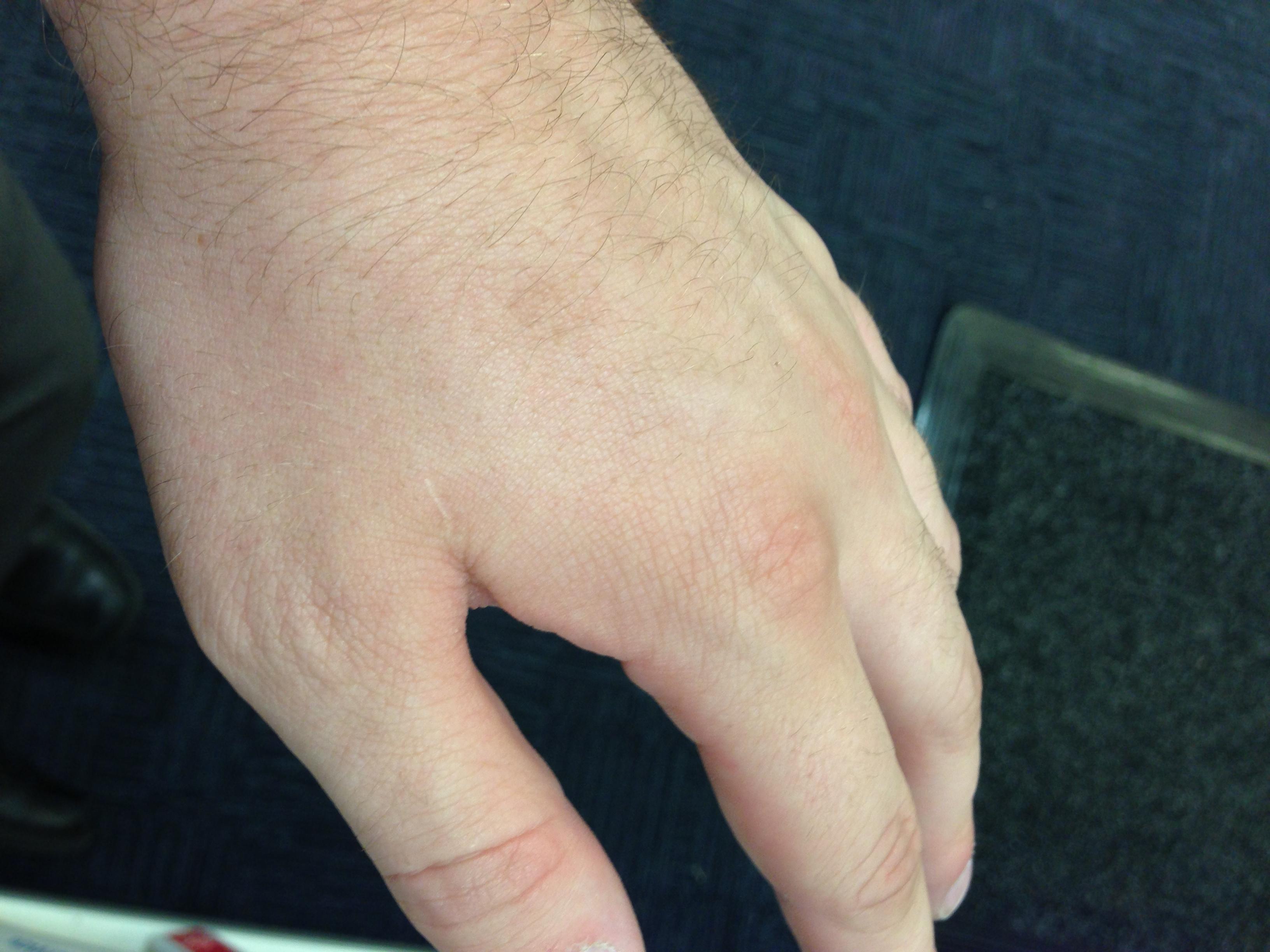 small warts on hands reddit uretra în condiloame