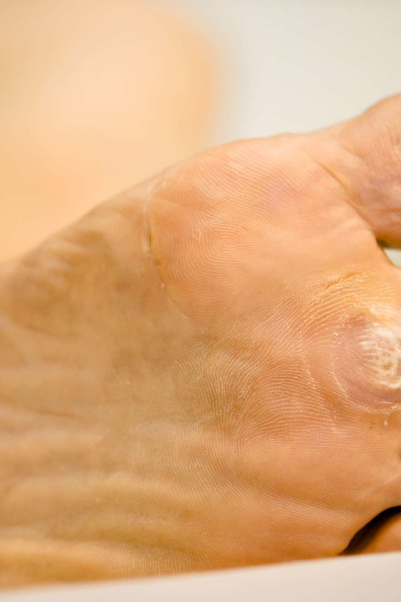 warts treatment and causes